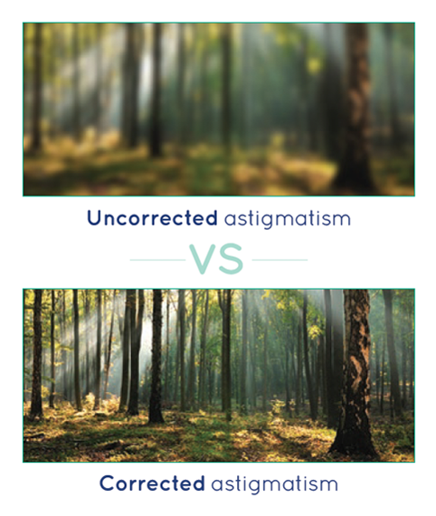 Uncorrected Astigmatism vs Corrected Astigmatism